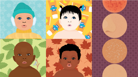 Seasonal Skincare for Your Baby